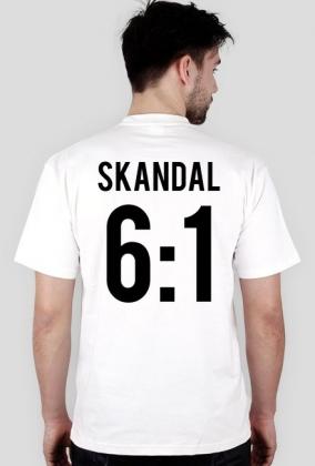 Legia SKANDAL 6:1 T-SHIRT